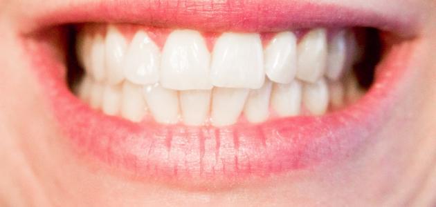 آثار تبيض الأسنان