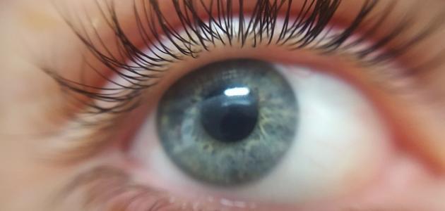 ما هو علاج ضغط العين المرتفع