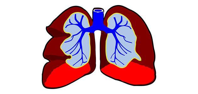 ما هي أعراض مرض ذات الرئة