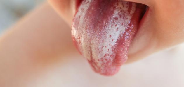 أنواع فطريات الفم