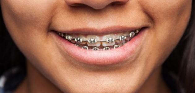 كيفية إزالة تقويم الأسنان