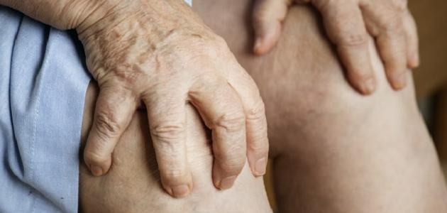 أضرار خشونة الركبة