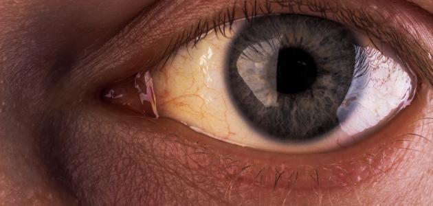 أسباب اصفرار بياض العين