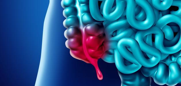 أعراض التهاب الزائدة عند الأطفال