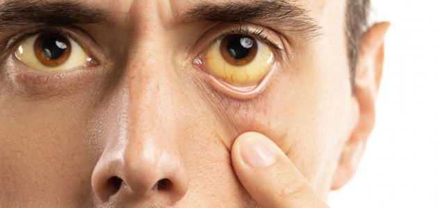 أعراض ارتفاع هيموجلوبين الدم موضوع