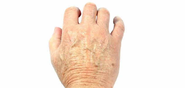 4dd3c922d علاج تشقق اليدين - موضوع