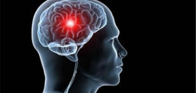 كيف تحدث الجلطة الدماغية