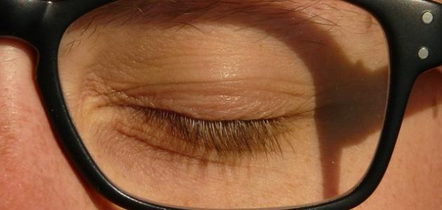 التهاب جفن العين الخارجي