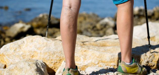 كيف تعالج دوالي الساقين