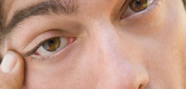 كيف أبعد السواد الي تحت العين