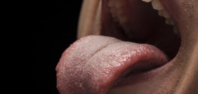 التهاب اللسان وعلاجه
