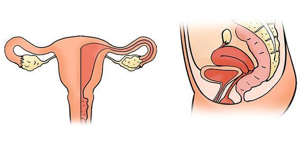 التهاب الرحم