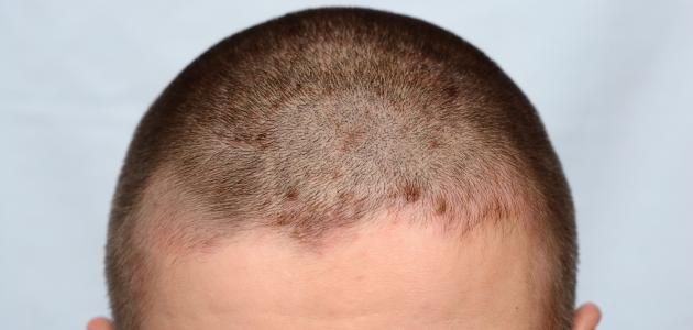 أعراض التهاب جلدة الرأس