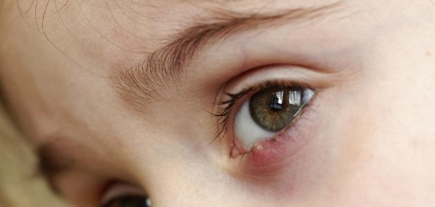 التهاب العين للأطفال