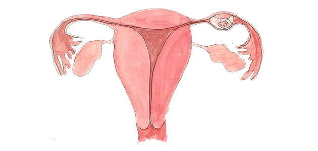 الحمل في قناة فالوب