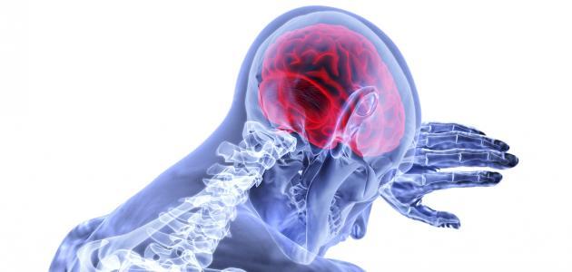 آثار الجلطة الدماغية