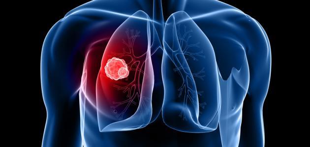 المرحلة الاخيرة لسرطان الرئة
