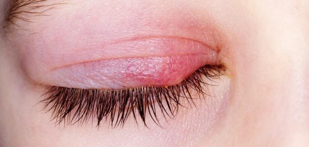 التهاب ملتحمة العين البكتيري