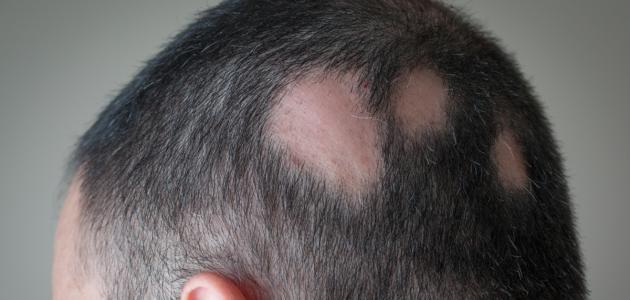 أعراض ثعلبة الشعر