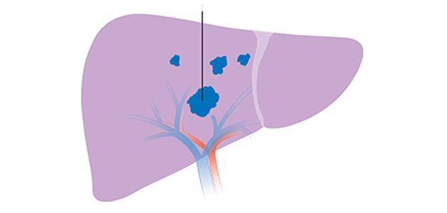 الفرق بين تليف الكبد وسرطان الكبد