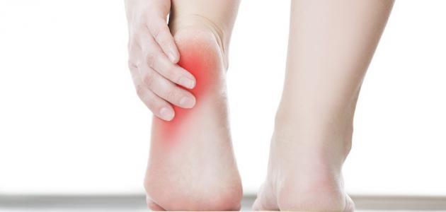 أعراض التهاب الوريد الخثاري