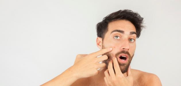 طريقة للقضاء على حبوب الوجه