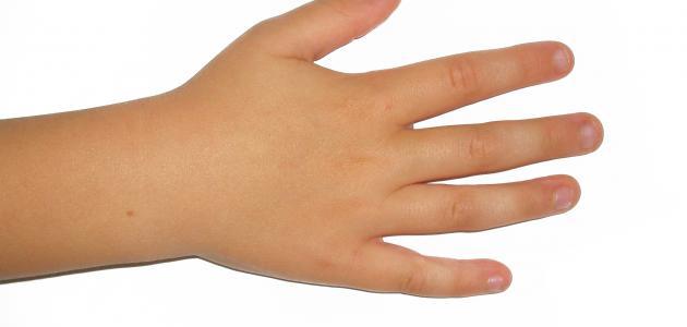 التخلص من عادة قضم الأظافر عند الاطفال