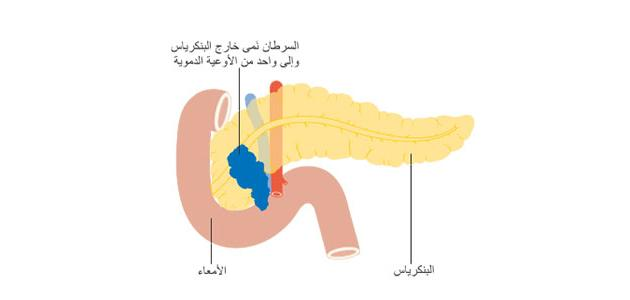 أورام البنكرياس وأعراضه