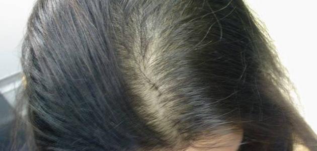 كيفية علاج تساقط الشعر طبيعياً
