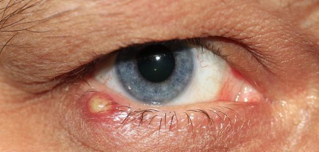 أمراض عيون