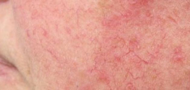 كيف تعالج حساسية الجلد