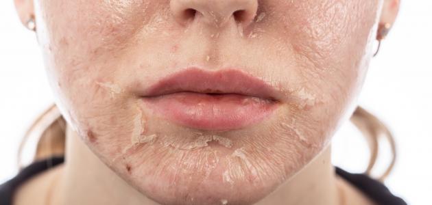 آثار حروق الوجه