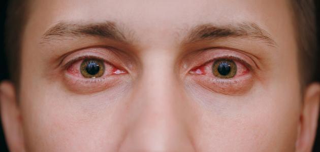 أمراض قزحية العين