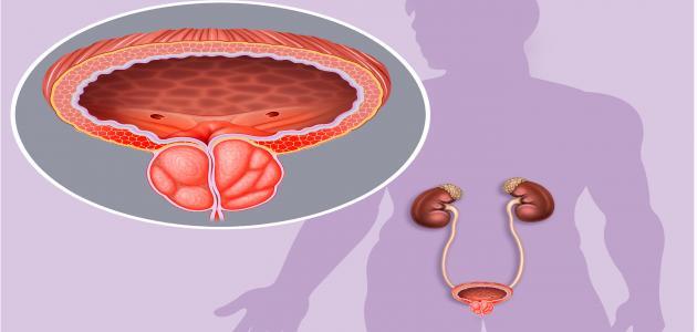 التهاب البروستاتا البكتيري