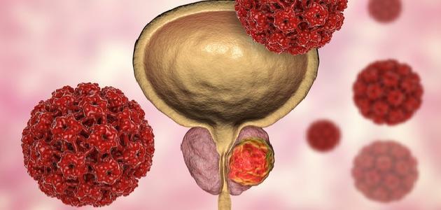 أمراض البروستاتا وعلاجها