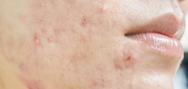 آثار الحبوب السوداء في الوجه
