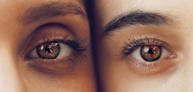 طرق علاج الهالات السوداء تحت العينين