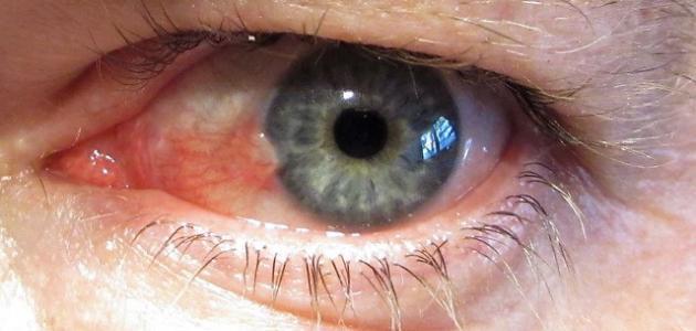 أمراض تصيب العين
