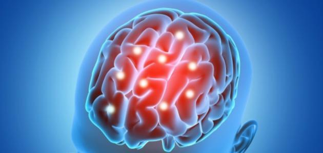 أعراض السرطان في المخ