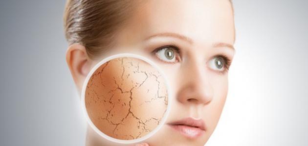 كيف تتخلص من جفاف الوجه