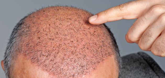 ما حكم زراعة الشعر