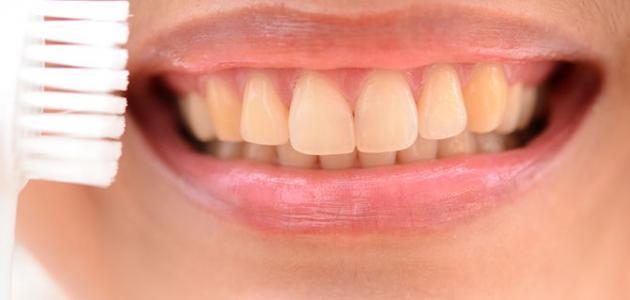 كيفية إزالة صفار الأسنان