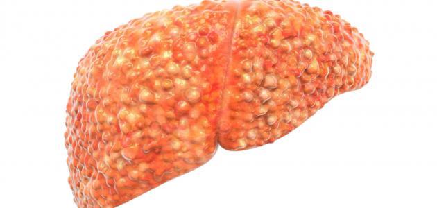 أسباب زيادة إنزيمات الكبد