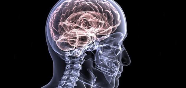 أعراض سكتة دماغية