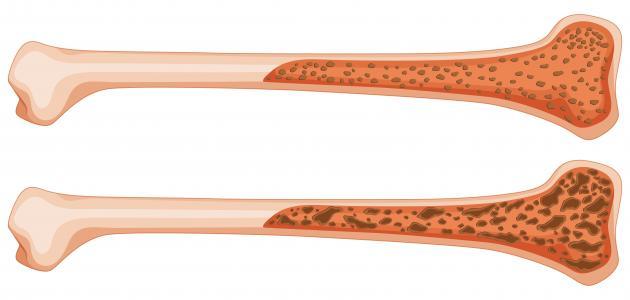 أضرار هشاشة العظام عند النساء