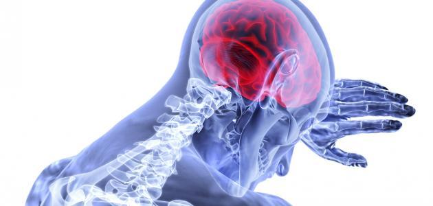 أسباب السكتة الدماغية