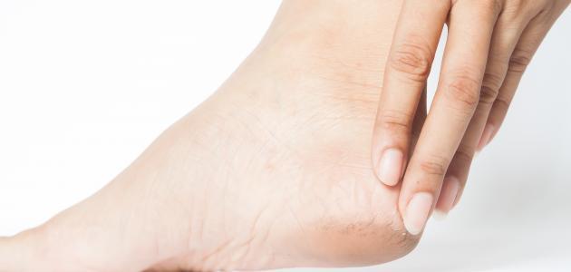 طريقة التخلص من شقوق القدمين