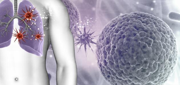 أعراض سرطان الشعب الهوائية
