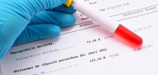 تحليل الأجسام المضادة للغدة الدرقية