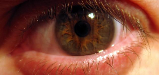 أسباب رمد العين
